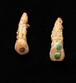王様は歯に宝石を埋め込んでいた